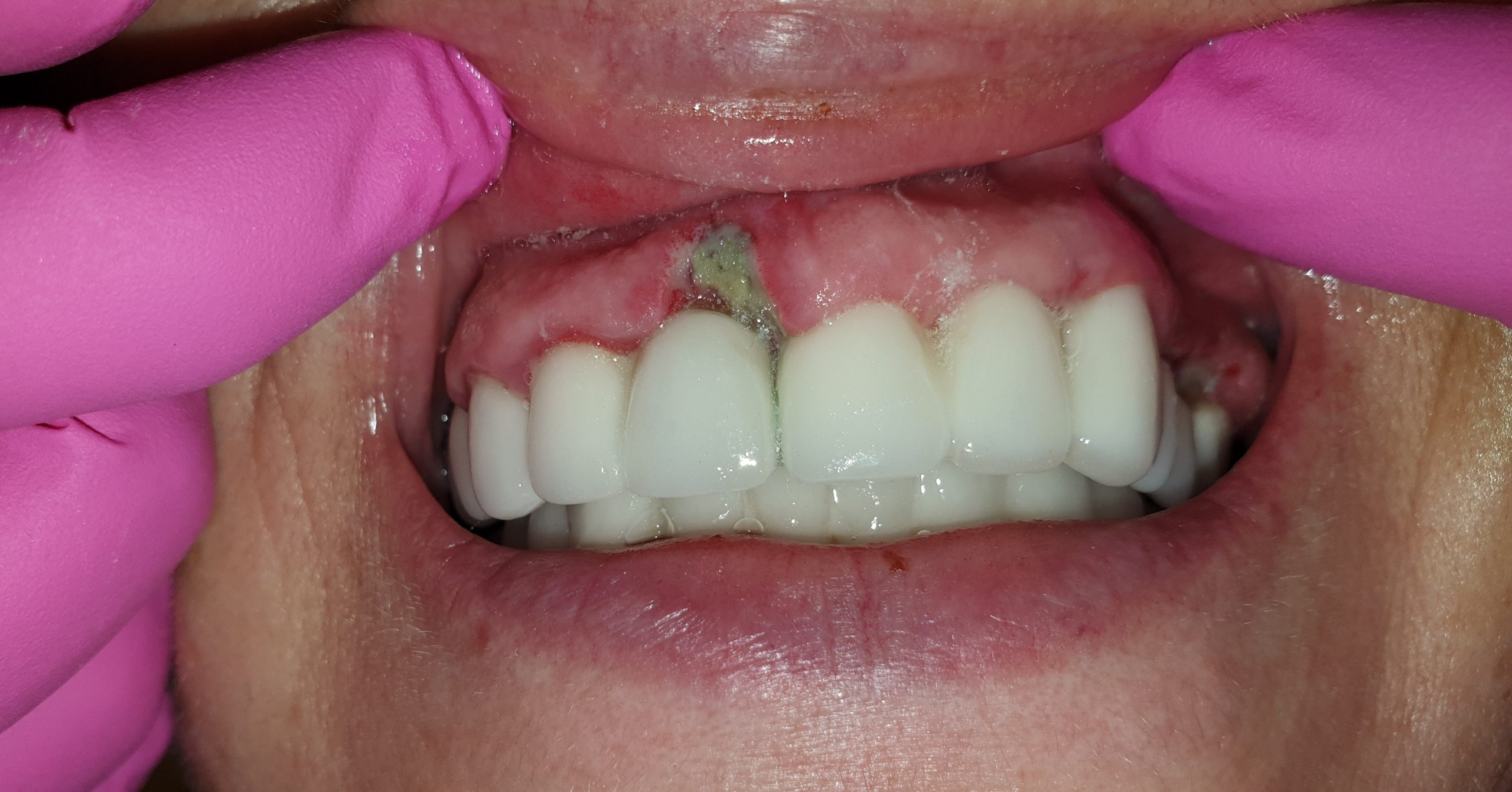 Before-Transplant Gingival